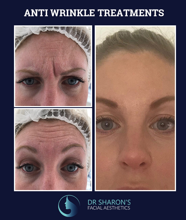 anti-wrinkle treatments before and after