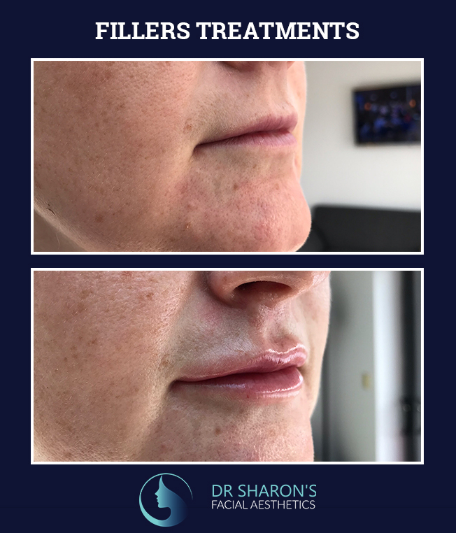 fillers treatments before and after