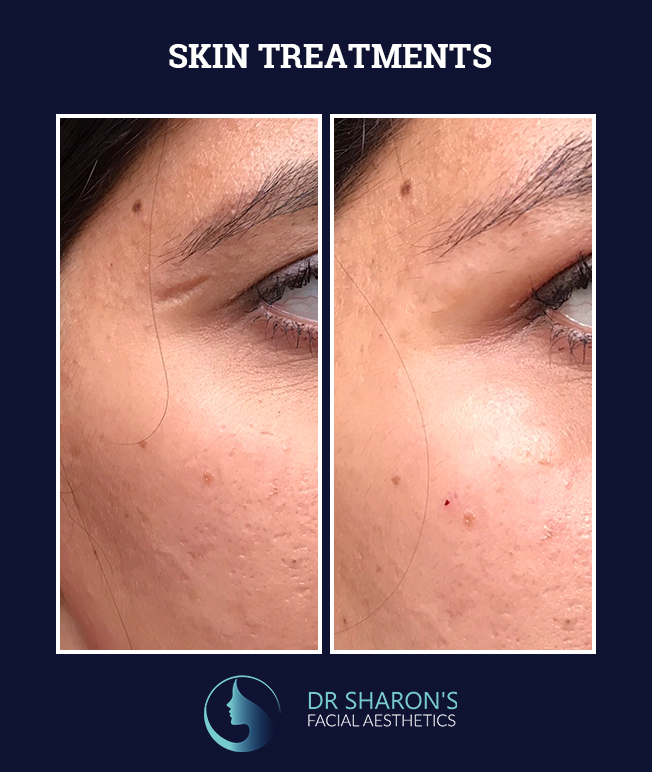 skin treatments before and after