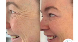 Botox®: A Versatile Anti-Ageing Treatment