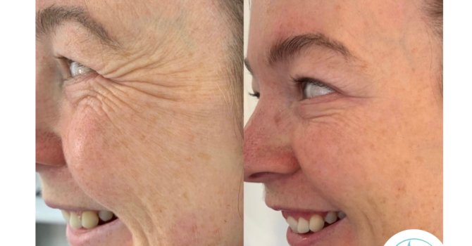 Botox®: A Versatile Anti-Ageing Treatment | Dr Sharon Facial Aesthetics