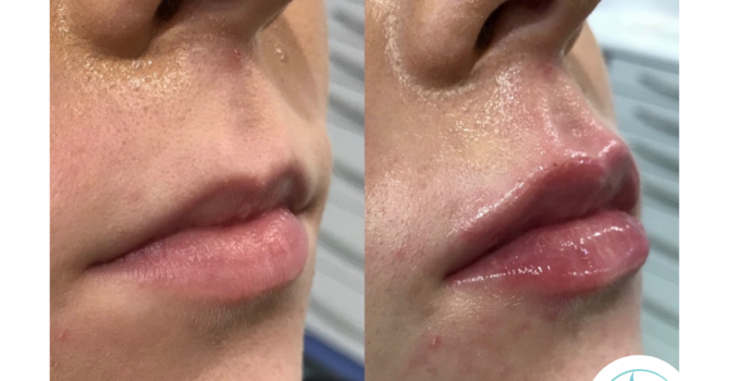 Lip Fillers: How To Avoid Migration and Lip Filler Spreading